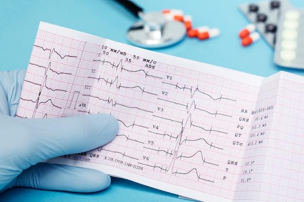 医者は彼の手に心臓の心電図を保持しています