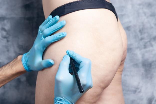 의사는 환자의 엉덩이에 자국을 남깁니다.