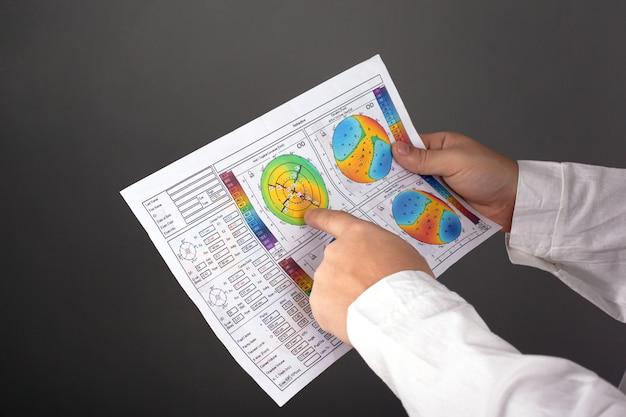Врач показывает пациенту диагноз кератоконус 2-3 степени. дистрофия роговицы. топография роговицы глаза.