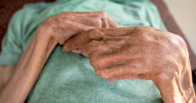 Рука пожилого пациента согнута.