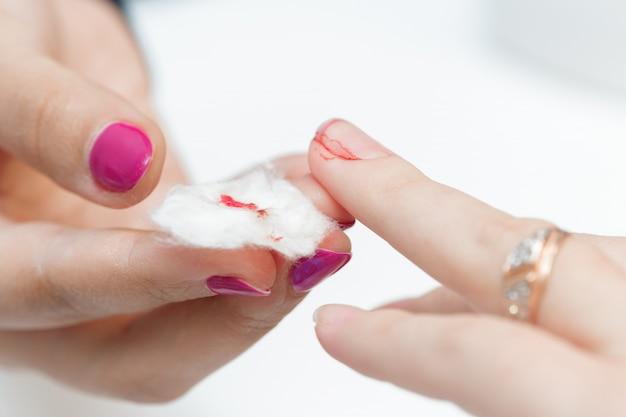 Девушка перенесла порез пальца на маникюр.
