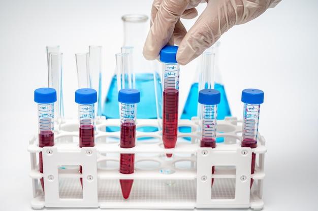 붉은 액체가 들어있는 원심 튜브를 들고 연구원의 손에.