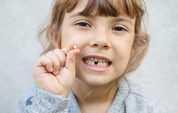 子供は赤ちゃんの歯を持っていました。
