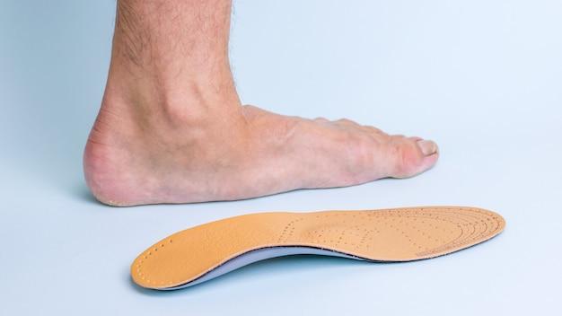 정형 외과 깔창 옆에 발 질환의 징후가있는 성인 남성의 왼쪽 다리. 평발을 치료하는 수단.