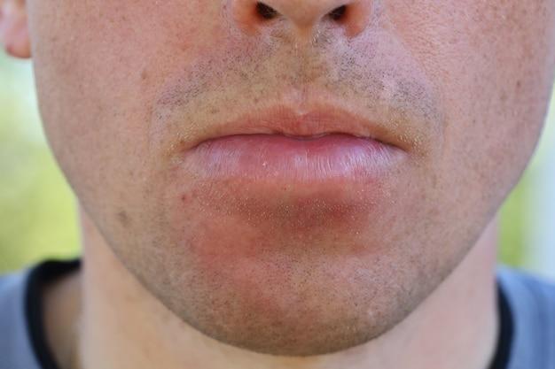Опухла нижняя губа. лицо опухло после укуса пчелы