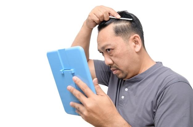 Мужчина средних лет сильно переживал из-за седины и изолированного выпадения волос.