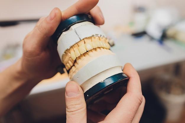 Процесс изготовления зубного протеза в зуботехнической лаборатории.