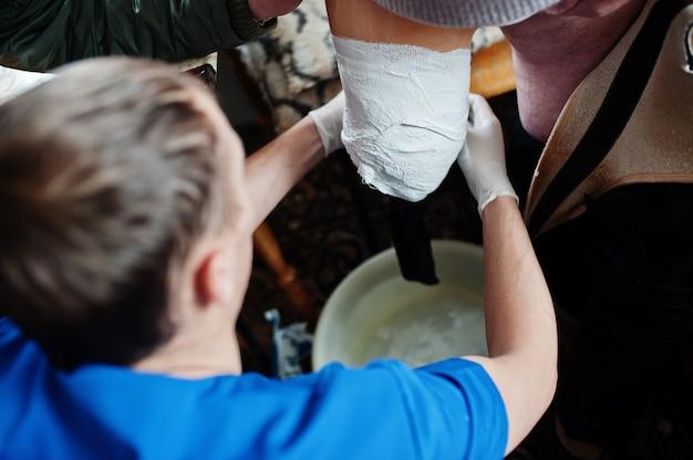 義肢装具士は、障害のある人、切断された女性からメジャーを削除します。