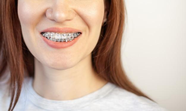 Улыбка молодой девушки с брекетами на ее белых зубах. выпрямление зубов. неправильный прикус. стоматологическая помощь.