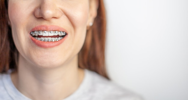 Улыбка молодой девушки с брекетами на ее белых зубах. выпрямление зубов.