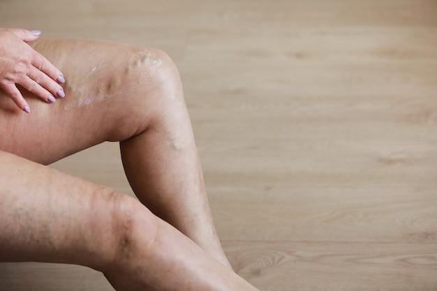 여성은 통증을 줄이기 위해 특별한 크림으로 피곤한 다리를 문지릅니다. 사혈학. 활동적인 여성 다리, 약 및 건강에 고통스러운 정맥류와 거미 정맥.
