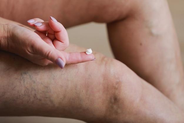 女性は痛みを和らげるために特別なクリームで疲れた足をこすります。静脈学。痛みを伴う静脈瘤