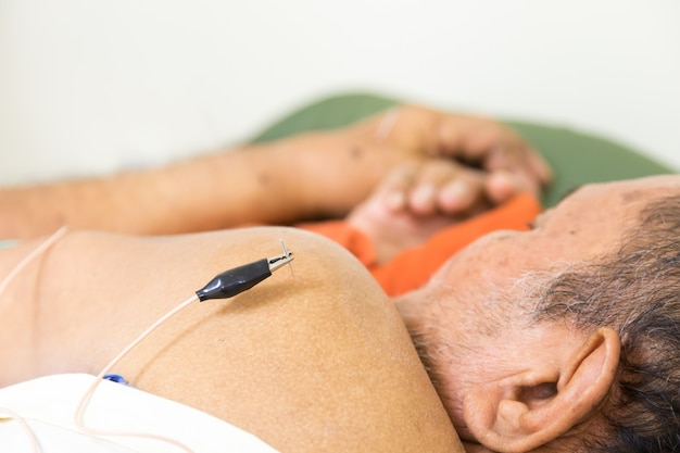 Therapist giving acupuncture treatment to an old man in hospital