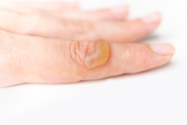 손가락의 화상으로 여자 손에 물집이 있습니다. 화상 피부에서 물집이 생깁니다.