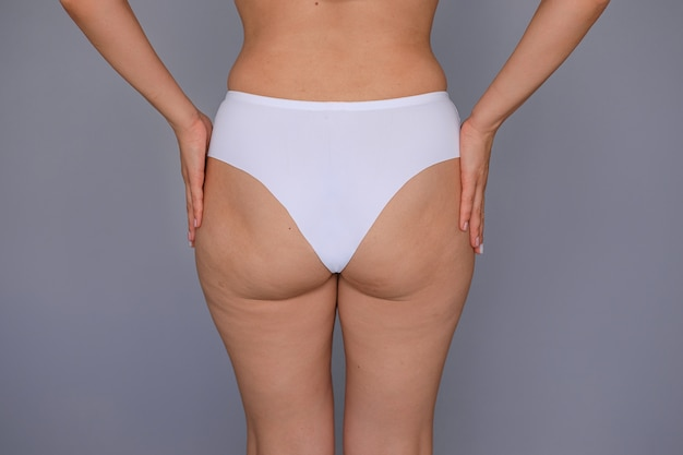 Thick with cellulite thighs and buttocks of a young woman