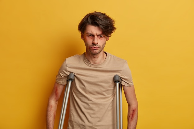 Thoughtful dissatisfied man with bruises around eyes has life threating injury, feels terrible pain, recovers after surgery at home, isolated over yellow wall, suffers after road traffic accident