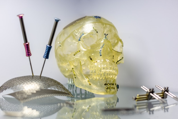 Tools and equipment for orthopedic and surgical reconstruction of the skull