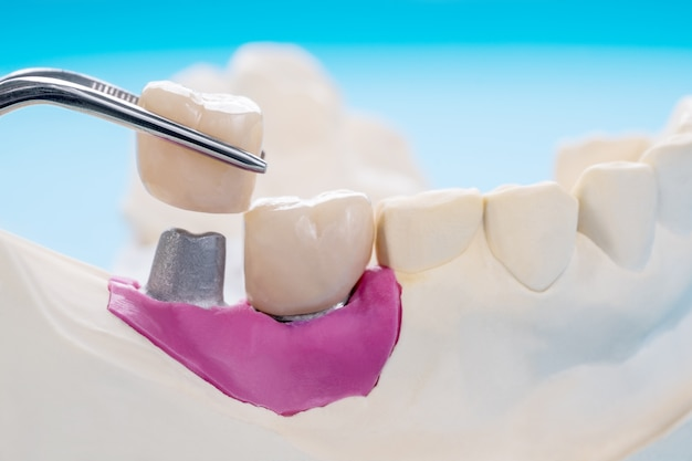Tooth crown and bridge implant dentistry equipment and model express fix restoration.