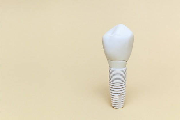 ベージュの背景の歯のインプラント人工歯の歯科インプラントモデル