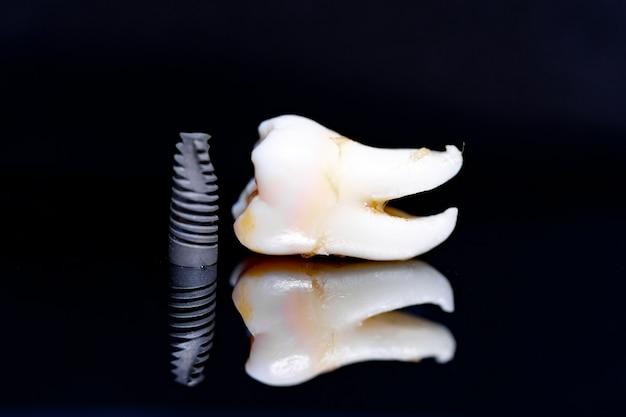 Модель зуба и имплантат на черном фоне. художественное фото для стоматологической концепции.