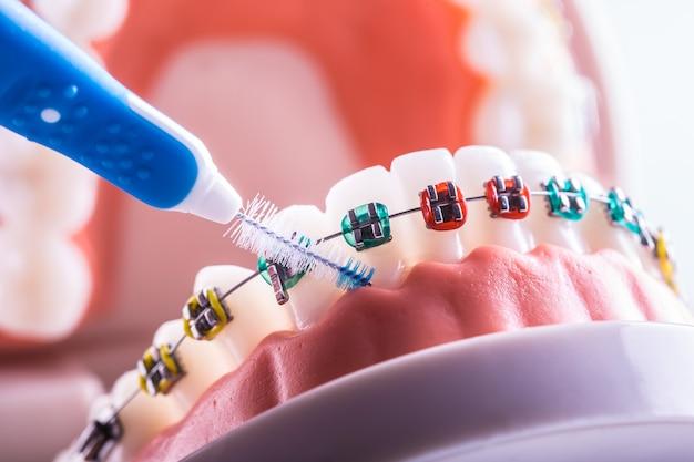 歯間歯のクリーニングブラシを備えた歯列矯正器からの歯のモデル。
