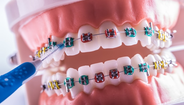 Модель зуба из брекетов с межзубной щеткой для чистки зубов.