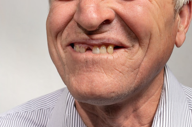 The toothless smile of an old european man on a gray background.