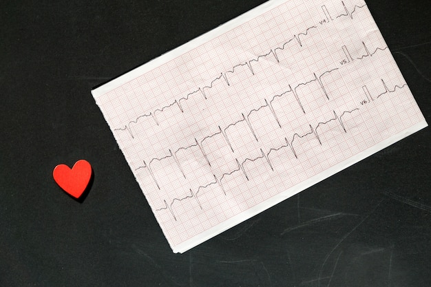 Top view of an electrocardiogram in paper form vith red wooden heart. ecg or ekg paper on black. medical and healthcare concept.