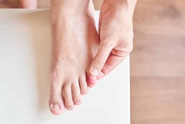 Вид сверху на небольшую травму пальца ноги при естественном освещении