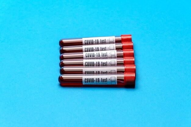 파란색 배경 위에 혈액 샘플 의학 테스트 튜브의 최고 볼 수 있습니다.