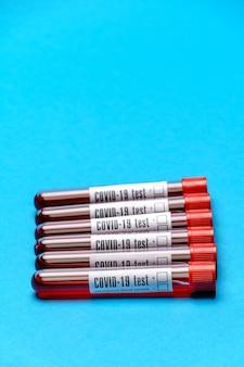 Взгляд сверху пробирок медицины с образцами крови на синем фоне.