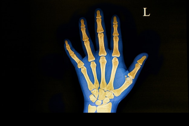 Traumatic fracture of the hand bone.