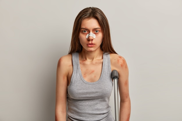 Пострадавшая женщина получила травму на работе, у нее проблемы со здоровьем, пластырь на сломанном носу, ушиб кожи, позы с костылями, по неосторожности упала на скользкую поверхность. опасность езды