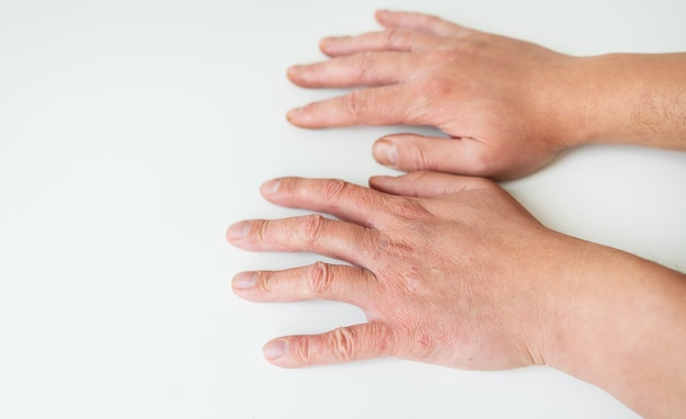 Лечение кожных заболеваний. псориаз, экзема, дерматит, диатез на руках человека. концепция медицины и лечения по направлению дерматология.