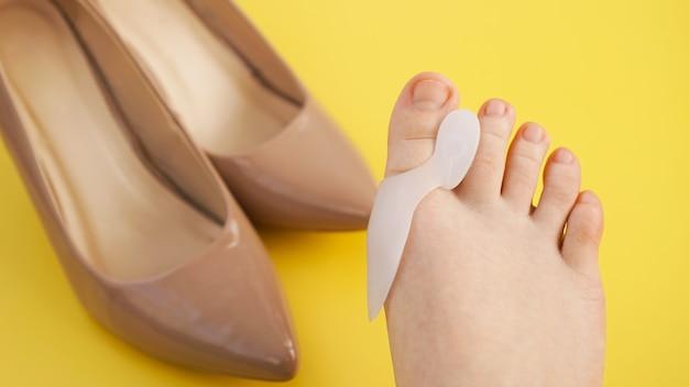 外反母趾の治療と予防。シリコンフィンガーセパレーター。黄色の背景に足。ぼやけた背景の靴