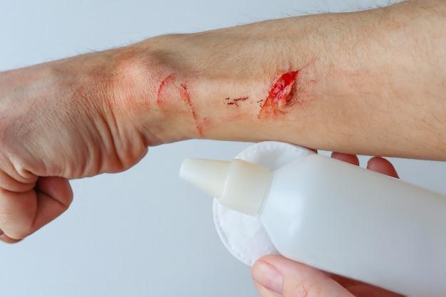 도움 소독제 외상에 대한 응급 처치로 열상 치료
