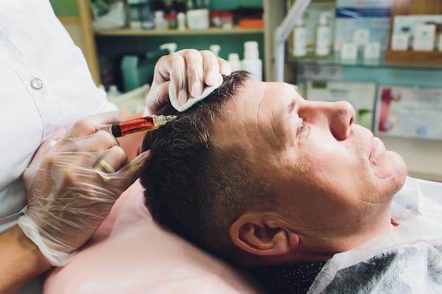 美容注射によるはげの治療。美容師は手袋をはめて手に皮下注射します。プラズマリフティングの男性患者。