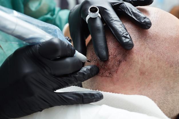 永久的なメイキングを行うプロの刺青師がtricopigmentationを構成します