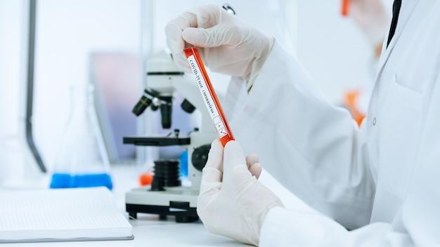 Пробирка с тестом в руках сотрудника лаборатории