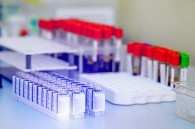 実験室でテストするための血液サンプルのチューブ。