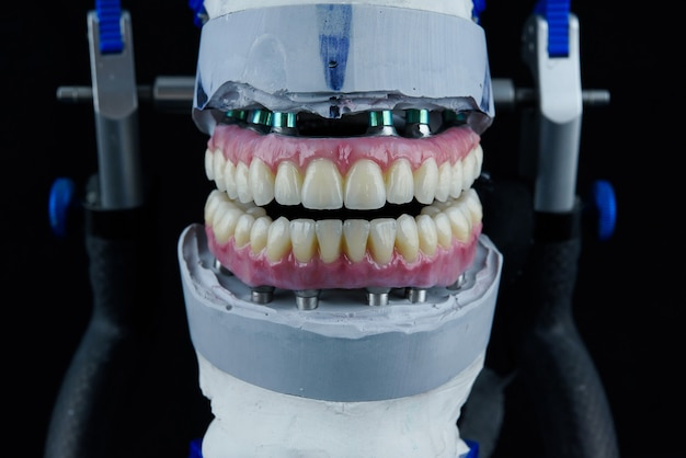 Two dental ceramic prostheses in the dental articulator