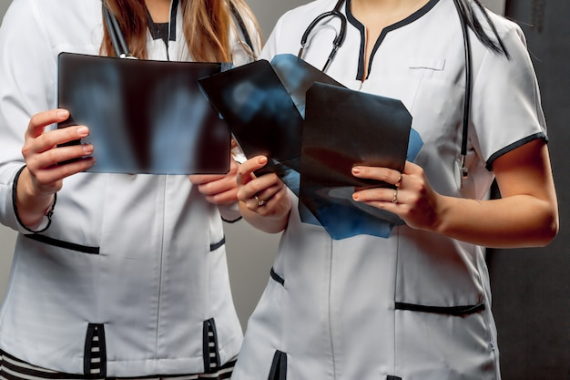 Two orthopedist female doctors hold in their hands some x-rays and examine them.