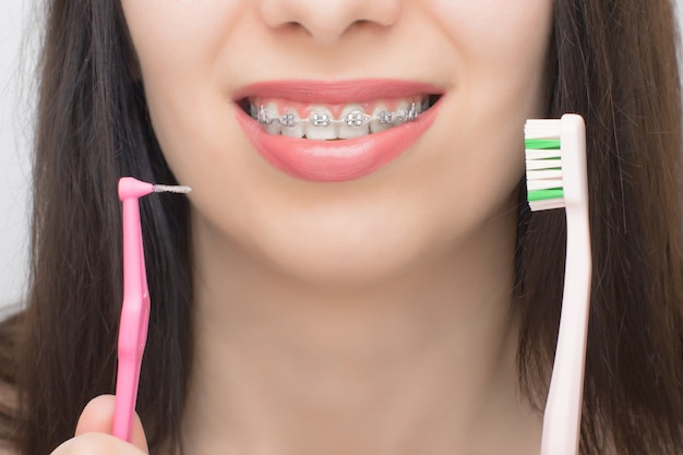 Two types of brush for cleaning teeth with dental braces. brackets on the teeth after whitening. self-ligating brackets with metal ties and gray elastics or rubber bands for perfect smile