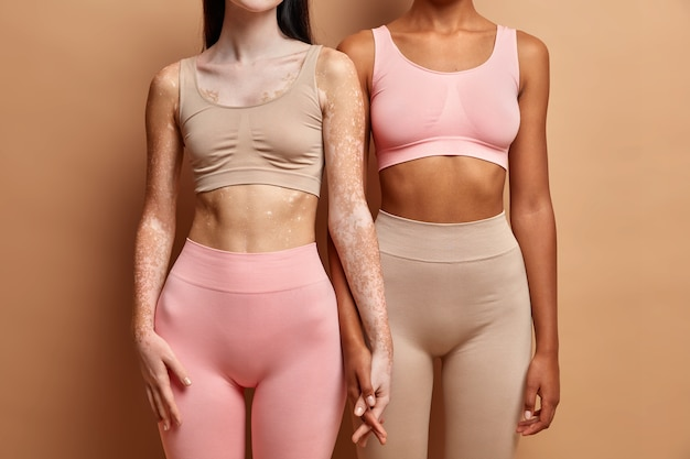 Two women of different skin condition standing together