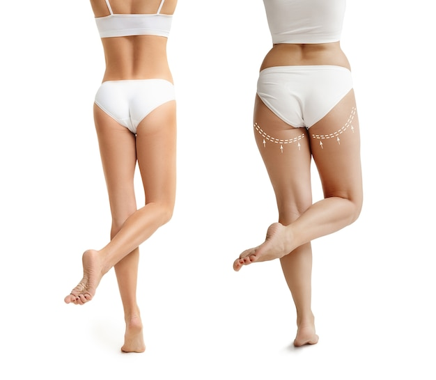 Two young thick and thin women have different figures comparison concept