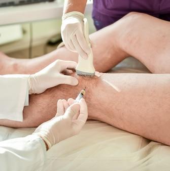Инъекция богатой тромбоцитами плазмы в колено под контролем ультразвука