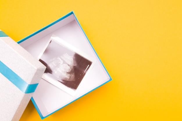 Ультразвуковое изображение в подарочной коробке на желтом фоне, копия пространства, вид сверху, Premium Фотографии