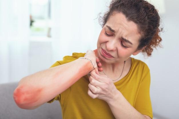 Неприятная болезненность. молодая кудрявая женщина осматривает красную болезненность на руке, вызванную ношением браслета, и недовольна своей непереносимостью металлов