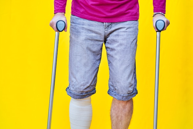Unrecognizable man from the front wearing a purple shirt shorts and on crutches, with a bandaged leg.