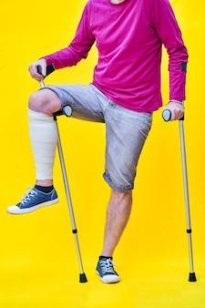 인식 할 수없는 남자는 보라색 티셔츠 반바지를 입고 목발에 한쪽 다리를 붕대를 감고 목발에 기대고 있습니다.